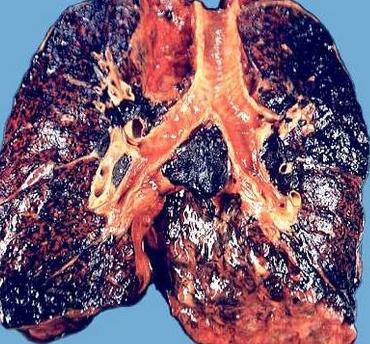 Textbook Tar in lungs.jpg